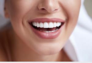 teeth straightening Adelaide
